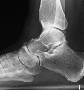 X-ray of the calcaneus (heel bone)