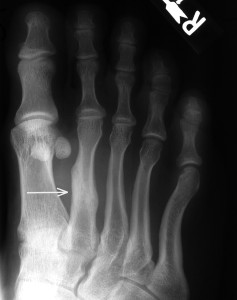 A severe stress fracture that has gone untreated and progressed to a full fracture.