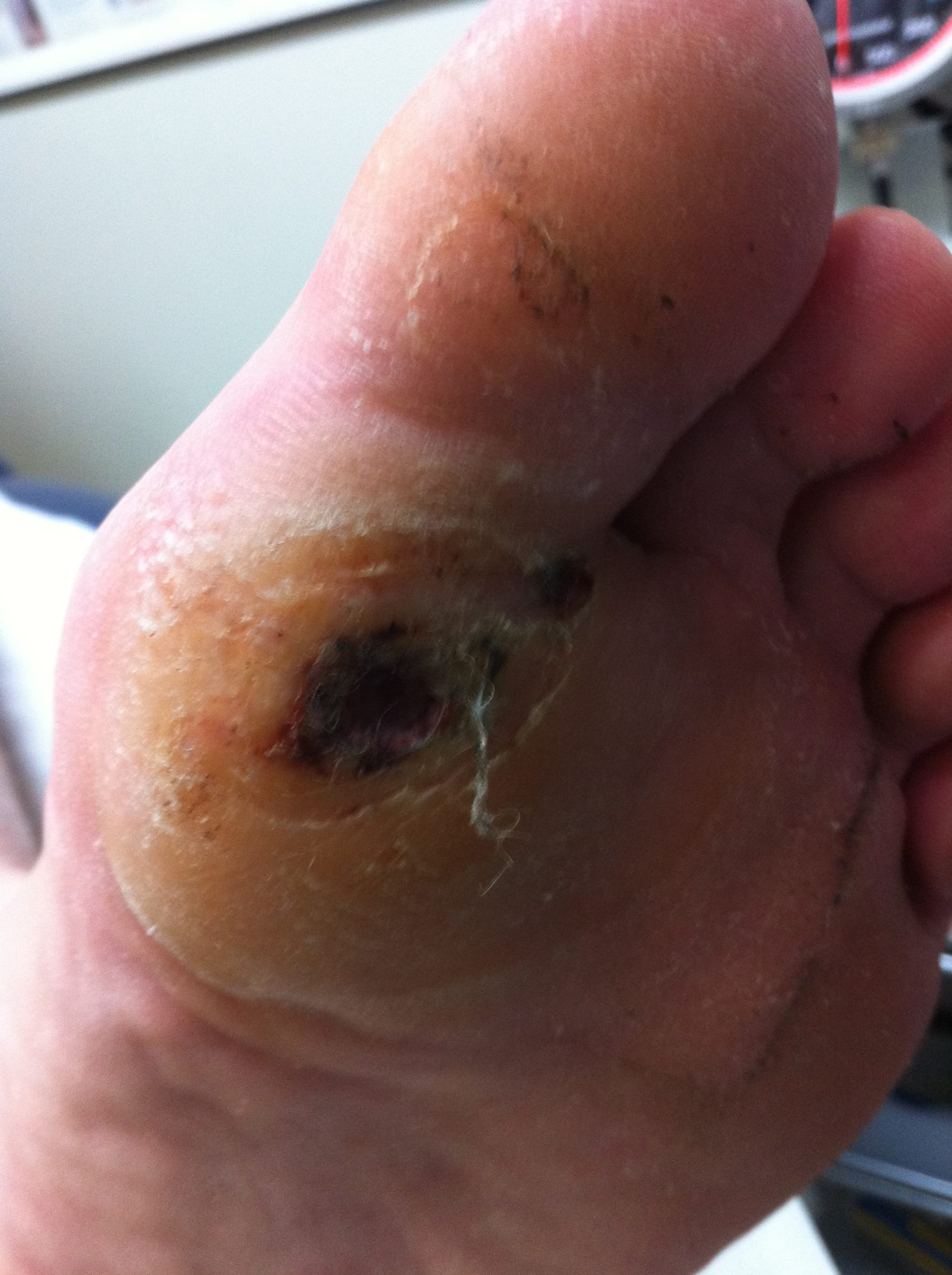 A painless ulcer developing under the big toe joint due to peripheral neuropathy