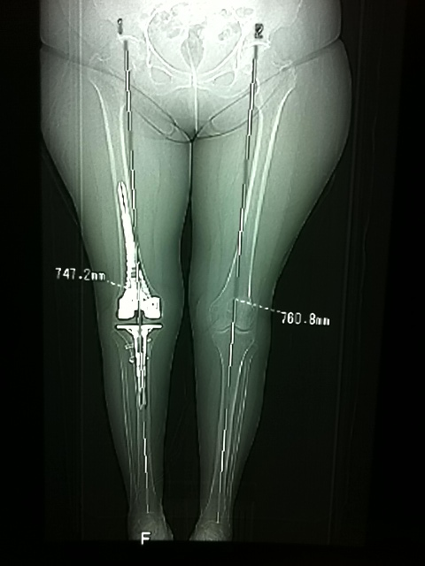 CT scanogram for leg length difference