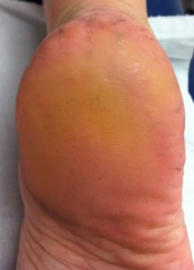 Clinical appearance of heel after one podiatry treatment.