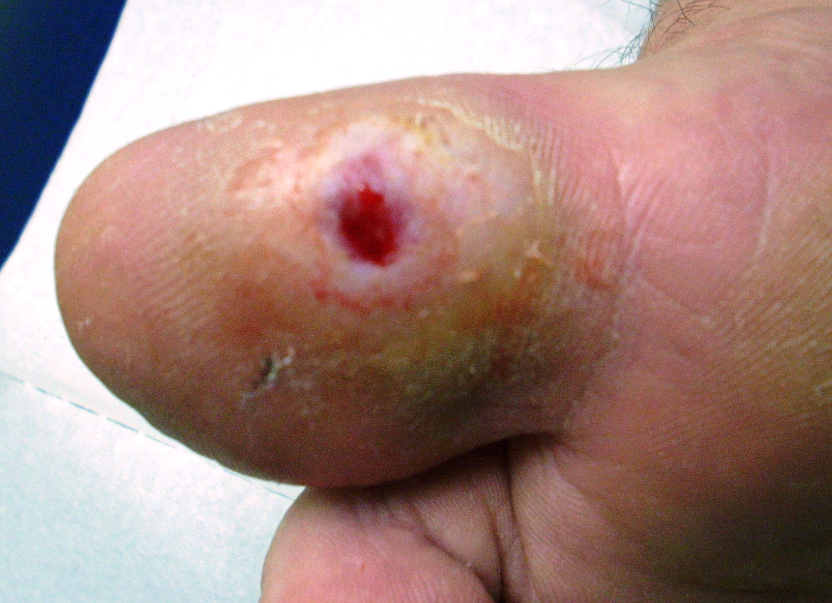 diabetic ulceration #10