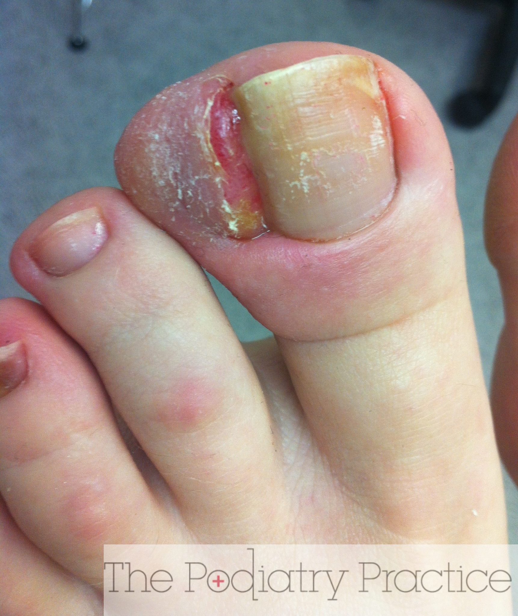 Wow, this is a severe ingrown toenail! - The Podiatry Practice
