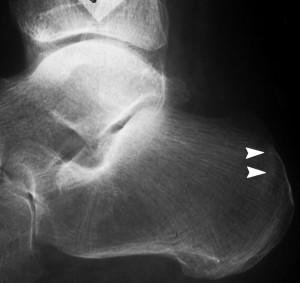 An x-ray showing a stress fracture of the calcaneus (heel bone) mimicking plantar fasciitis.