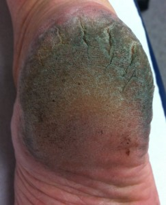 Callused and fissured heel prior to treatment