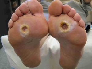 foot ulcer diabetes
