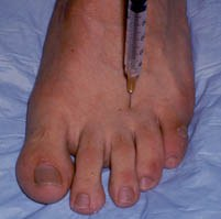 Neuroma injection2