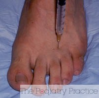 Neuroma injection