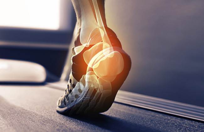 orthotics brisbane orthotics experts